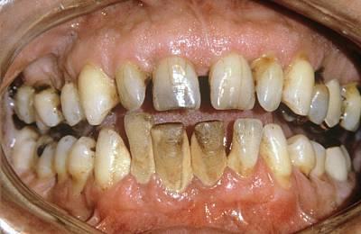 Dental Tartar Print by Dr. J.p. Casteyde/cnri