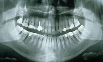 Dental X-ray Showing Fillings Print by Gjlp - Cnri