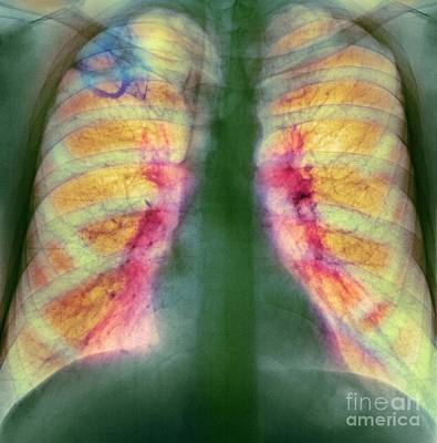 Drug Use Lung Damage, X-ray Print by Spl