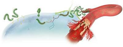Ebola Virus Infection Print by Claus Lunau