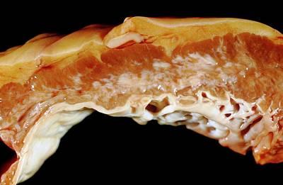 Interior Still Life Photograph - Endocardial Fibroelastosis by Pr. M. Forest - Cnri