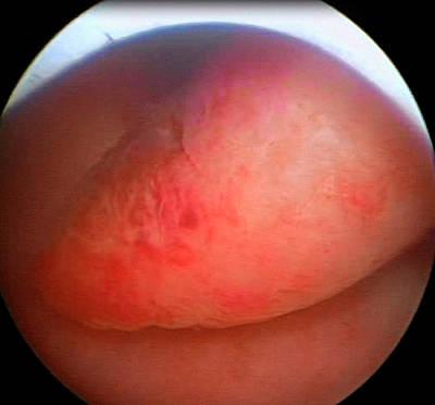 Endoscopy Photograph - Endometrial Polyp by Dr Najeeb Layyous