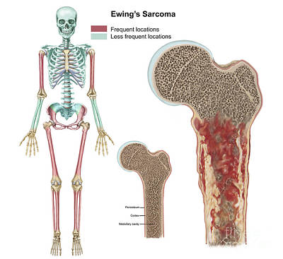 Ewings Sarcoma Locations Print by TriFocal Communications