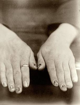 Transmitting Photograph - Fingernail Loss Due To Syphilis by National Library Of Medicine