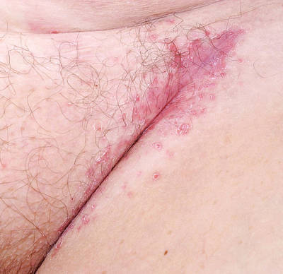 Flexural Psoriasis Of A Groin Cleft Print by Science Photo Library