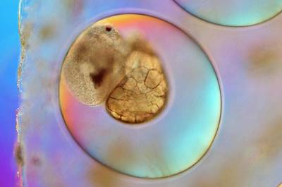 Hepatica Photograph - Galba Truncatula Egg With Embryo by Sinclair Stammers