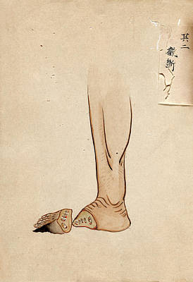 Gangrene Amputation Print by National Library Of Medicine