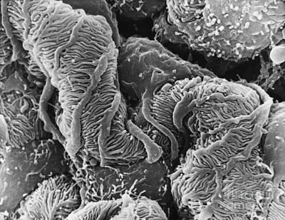 Anatomic Photograph - Glomerulus Sem by David M. Phillips