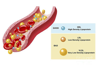 Good And Bad Cholesterol Found In Blood Print by TriFocal Communications