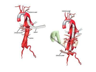 Graft Implant To Repair Dissecting Aorta Print by John T. Alesi