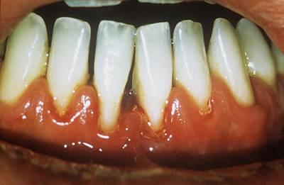 Gum Disease Print by Dr. J.p. Casteyde/cnri
