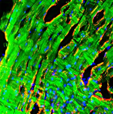 Heart Muscle Print by R. Bick, B. Poindexter, Ut Medical School