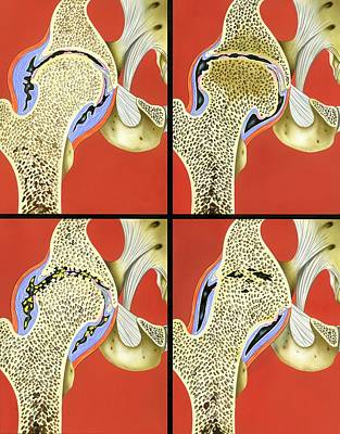 Hip Joint Degeneration Print by John Bavosi