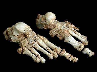 Oblique Photograph - Homo Heidelbergensis Fossil Foot Bones by Javier Trueba/msf