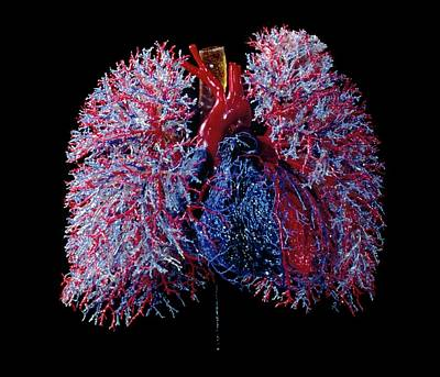 Polymer Photograph - Human Heart And Lung Blood Vessels by Clouds Hill Imaging Ltd