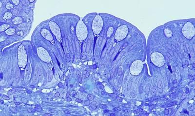 Human Intestine Print by Microscape
