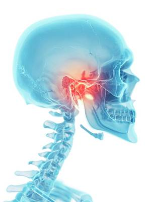 Human Joint Photograph - Human Jaw by Sciepro