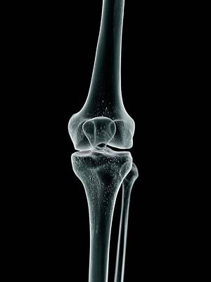 Human Joint Photograph - Human Knee Joint by Sciepro