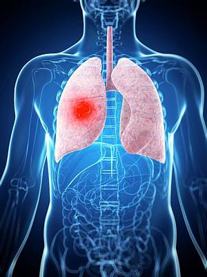 Human Lung Cancer Print by Sebastian Kaulitzki