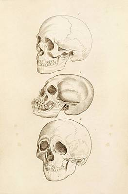 Oblique Photograph - Human Skulls by King's College London