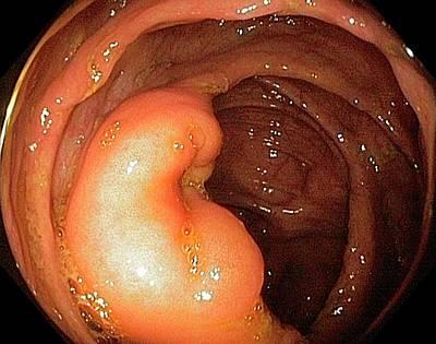 Endoscopy Photograph - Ileocaecal Valve by Gastrolab