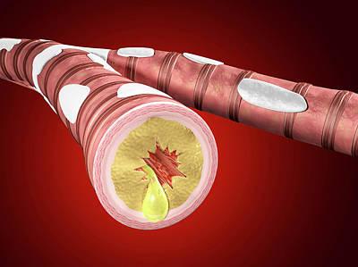 Abnormal Photograph - Illustration Of Bronchitis by Harvinder Singh