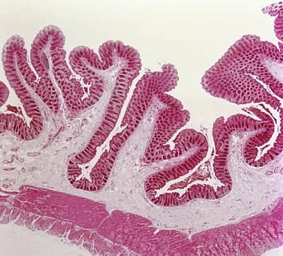 Intestinal Villi Print by Overseas/collection Cnri/spl