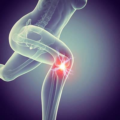 Jogger With Knee Pain Print by Sebastian Kaulitzki