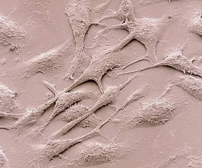 Keratinocytes Print by Steve Gschmeissner