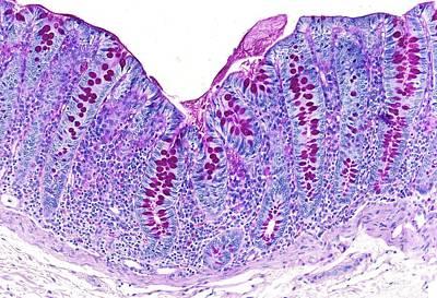 Large Intestine Print by Microscape