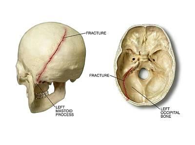 Left Posterior Occipital Skull Fracture Print by John T. Alesi
