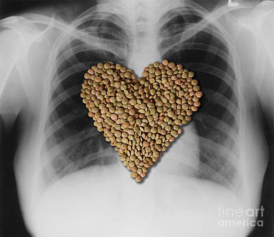 Heart Healthy Photograph - Lentils, Heart-healthy Food by Gwen Shockey