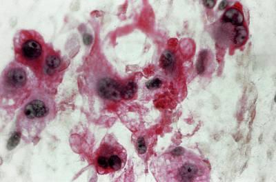 Oncology Photograph - Liposarcoma by Cnri