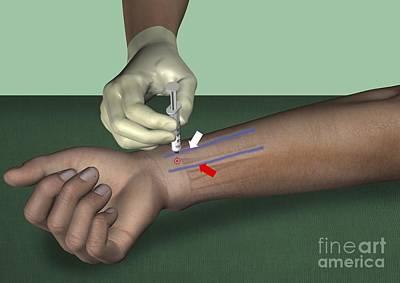 Median Nerve Wrist Block, Artwork Print by D & L Graphics