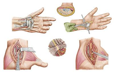 Human Joint Digital Art - Medical Illustration Showing Carpal by Stocktrek Images