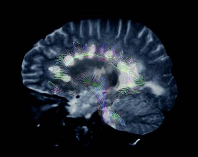 Mri Photograph - Multiple Sclerosis by Zephyr