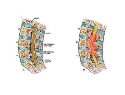 Nerve Compression In Lumbar Stenosis Print by John T. Alesi