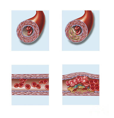 Normal Artery Compared To Plaque Print by TriFocal Communications