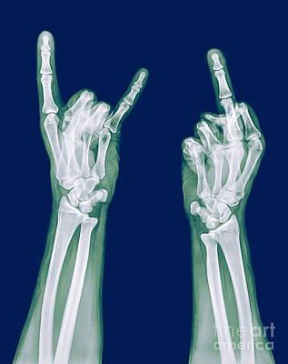 Obscene Gestures X-ray Print by Guy Viner
