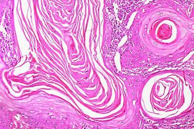 Oesophageal Cancer Print by Antonio Romero