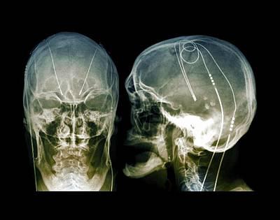 Pd Photograph - Parkinson's Brain Pacemaker by Zephyr