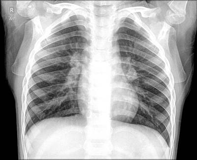 Radiograph Photograph - Pneumonia by Photostock-israel