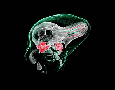 X-ray Image Photograph - Porpoise Foetus by Rebecca Summerfield/natural History Museum, London