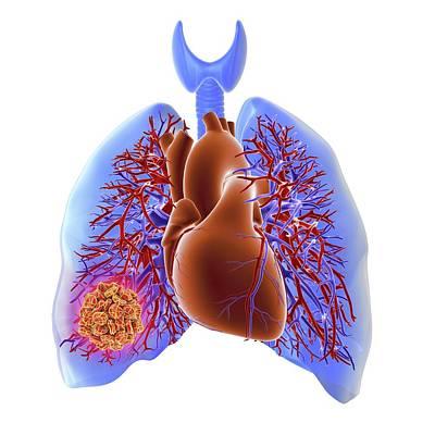 Pulmonary Embolism Print by Alfred Pasieka