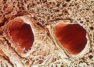 Pulmonary Vein And Artery Print by Pir/cnri