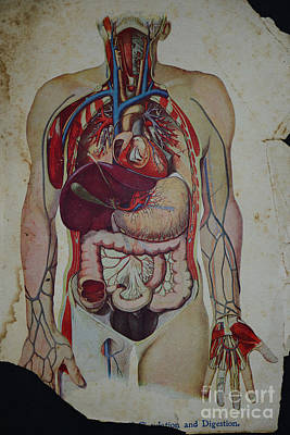 Rare Medical Illustration 3 Of 4 Print by Paul Ward