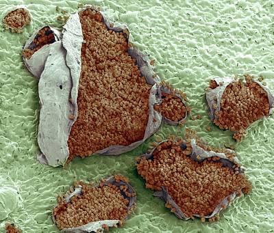 Rust Fungus On A Bellflower Leaf Print by Steve Gschmeissner