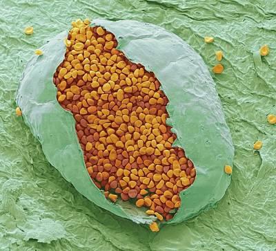 Rust Fungus Print by Steve Gschmeissner