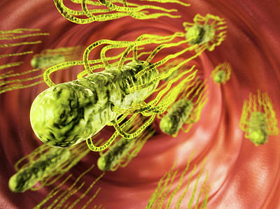 Salmonella Infection Print by Harvinder Singh