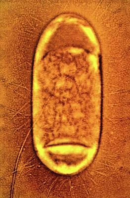 Salmonella Typhimurium Bacterium Print by Peter Cooke, Lenier Tucker/us Department Of Agriculture
